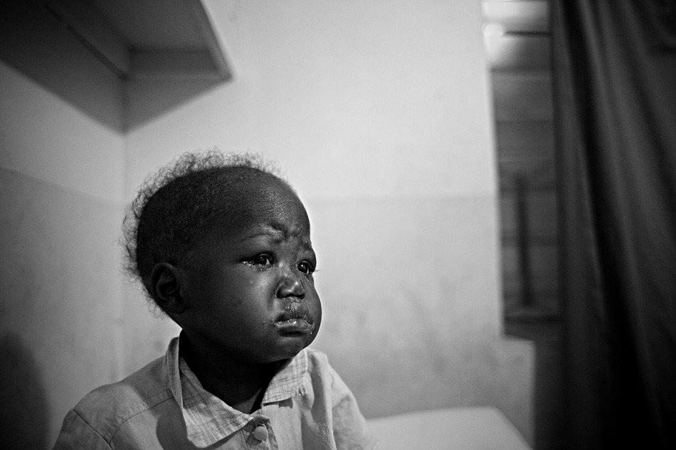 Malnourished child, Haiti